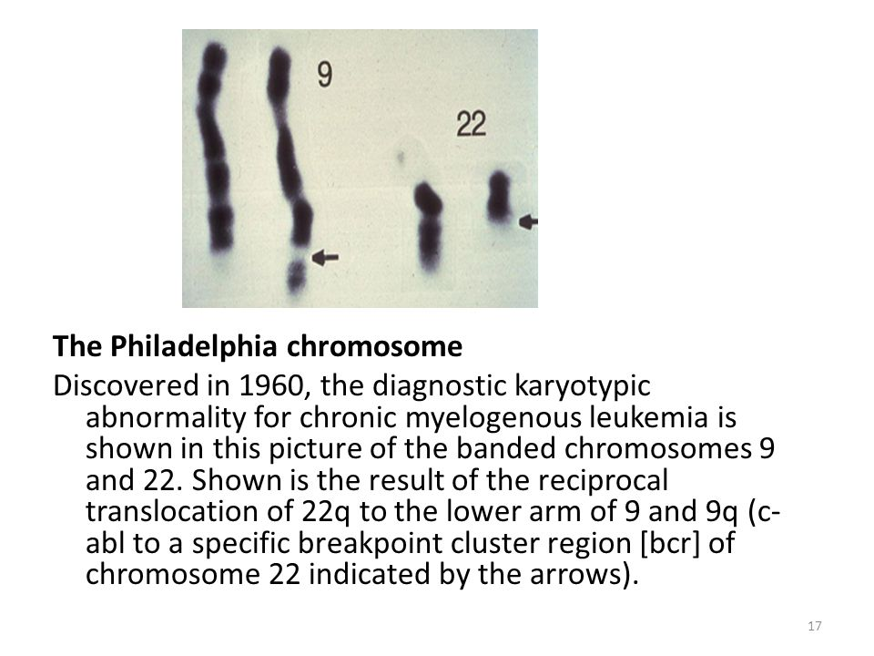 The Philadelphia chromosome Discovered in 1960, the diagnostic karyotypic abnormality for chronic myelogenous leukemia is shown in this picture of the banded chromosomes 9 and 22.