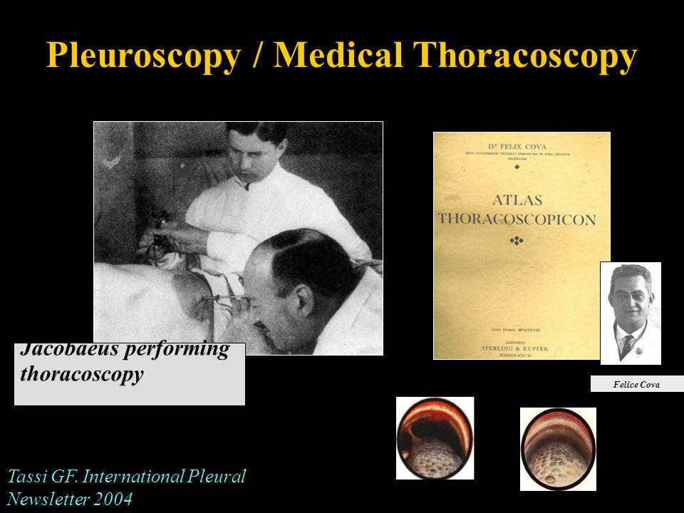 Pleuroscopy / Medical Thoracoscopy Jacobaeus performing thoracoscopy Felice Cova Tassi GF.