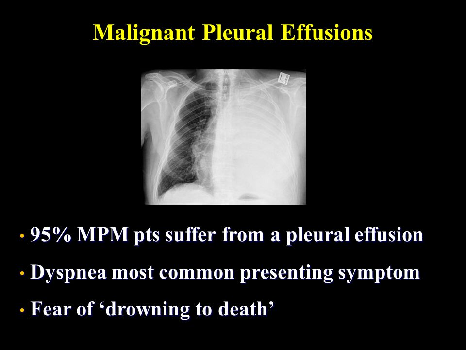 Malignant Pleural Effusions 95% MPM pts suffer from a pleural effusion 95% MPM pts suffer from a pleural effusion Dyspnea most common presenting sympt