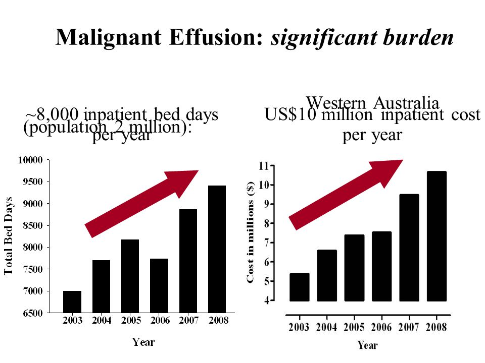 Malignant Effusion: significant burden Western Australia (population 2 million): ~8,000 inpatient bed days per year US$10 million inpatient cost per y