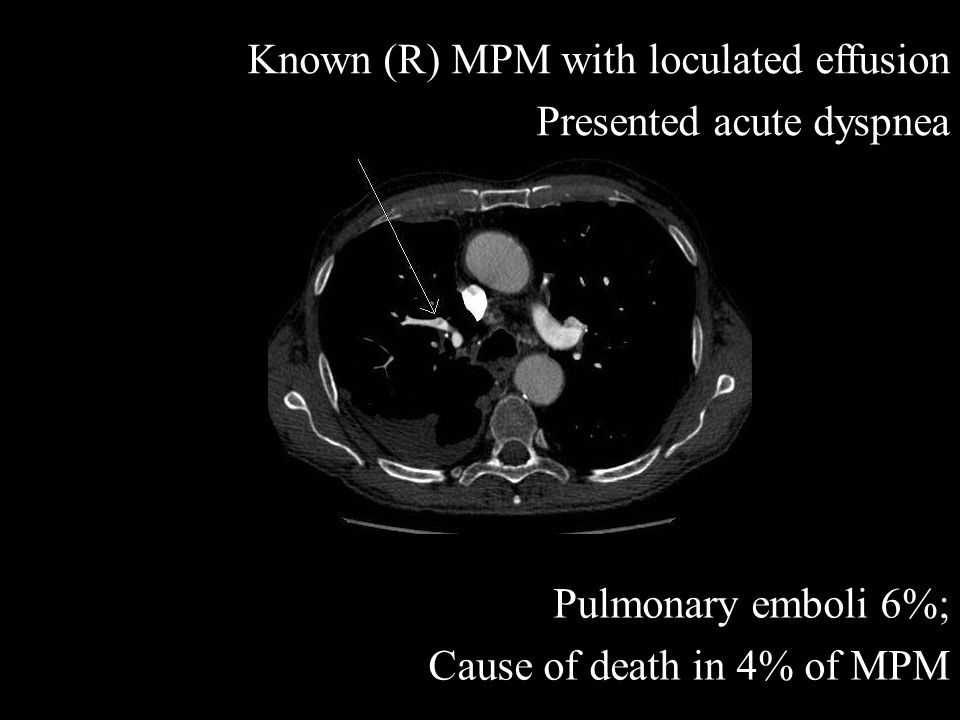 Known (R) MPM with loculated effusion Presented acute dyspnea Pulmonary emboli 6%; Cause of death in 4% of MPM