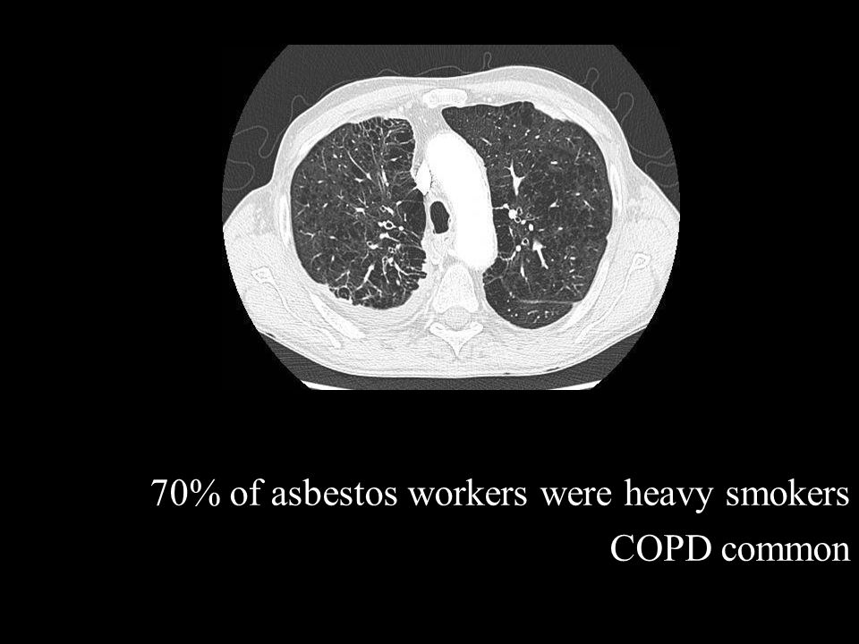 70% of asbestos workers were heavy smokers COPD common