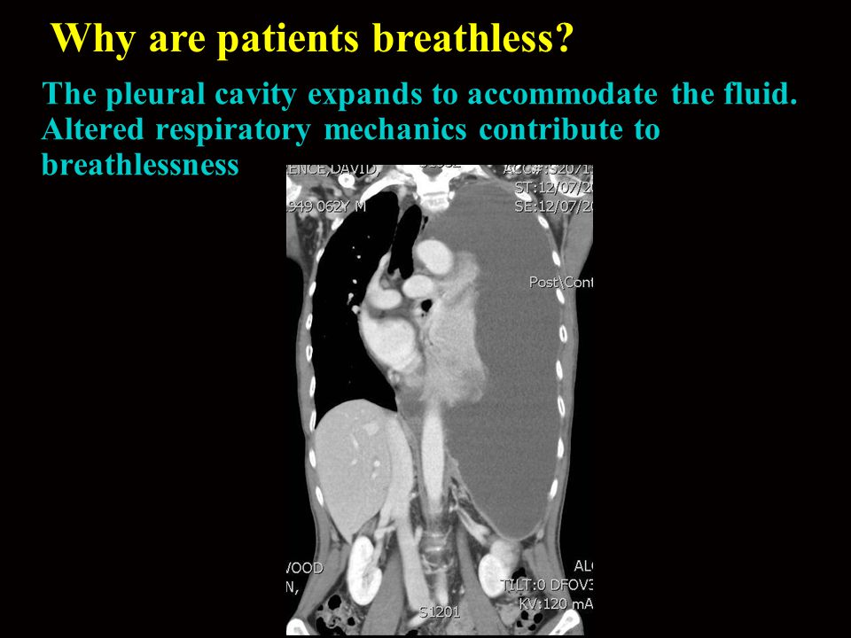 Why are patients breathless? The pleural cavity expands to accommodate the fluid. Altered respiratory mechanics contribute to breathlessness