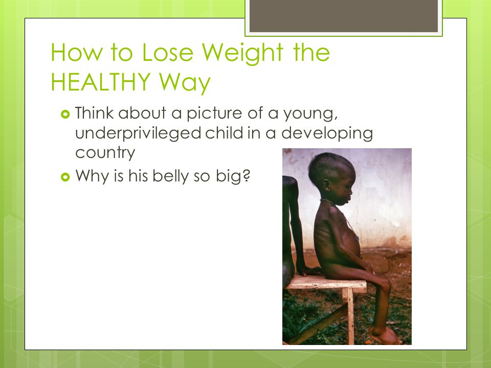How to Lose Weight the HEALTHY Way  Think about a picture of a young, underprivileged child in a developing country  Why is his belly so big