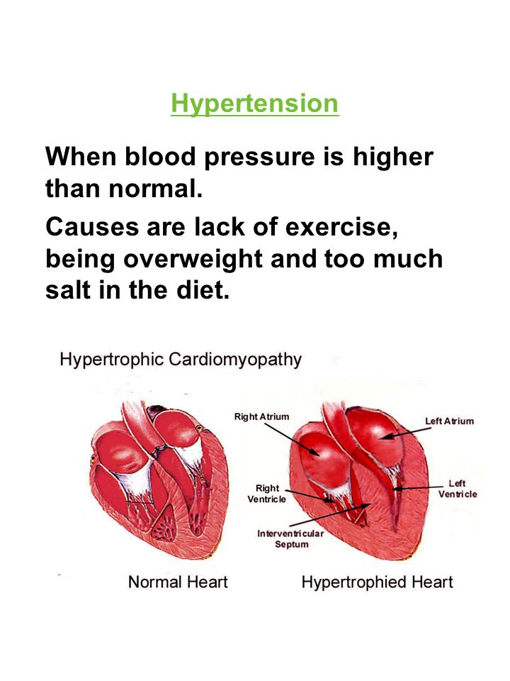 Hypertension When blood pressure is higher than normal. Causes are lack of exercise, being overweight and too much salt in the diet.