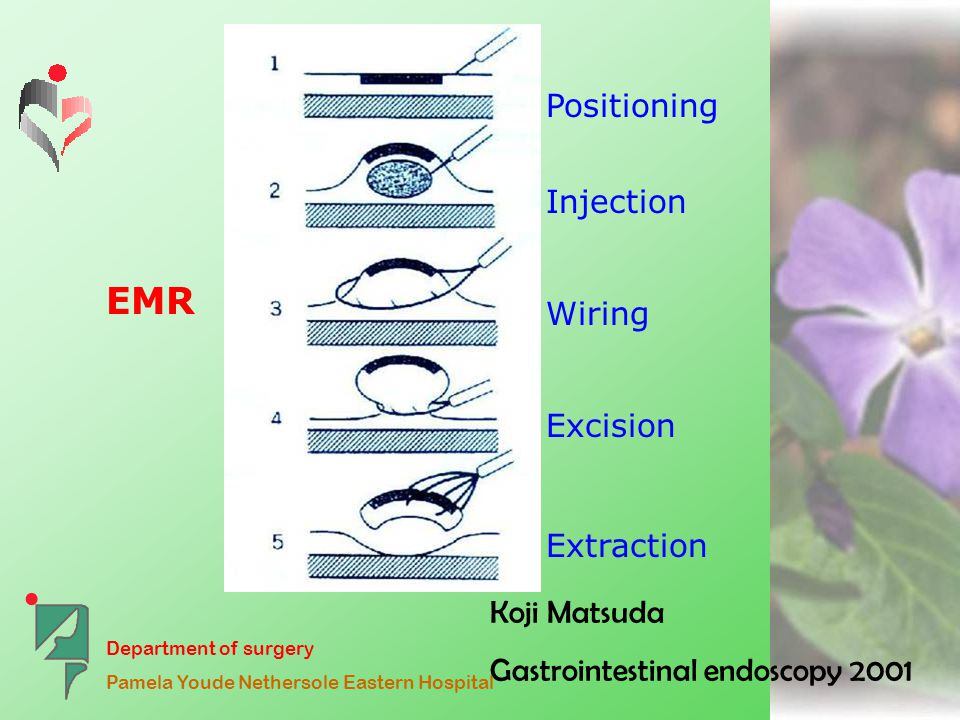 Department of surgery Pamela Youde Nethersole Eastern Hospital Koji Matsuda Gastrointestinal endoscopy 2001 Positioning Injection Wiring Excision Extraction EMR