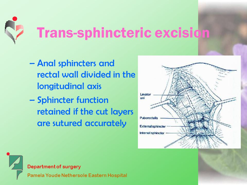 Department of surgery Pamela Youde Nethersole Eastern Hospital Trans-sphincteric excision –Anal sphincters and rectal wall divided in the longitudinal axis –Sphincter function retained if the cut layers are sutured accurately
