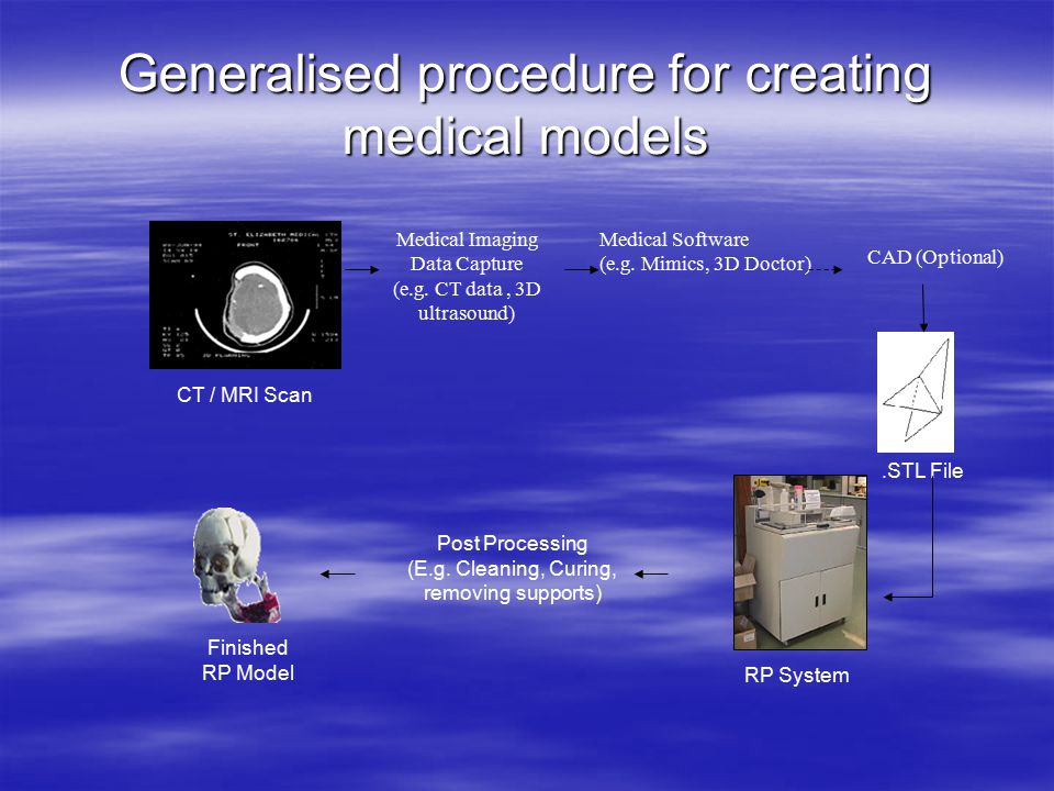 Medical modeling process  CT/MRI data most common methods used –Resolution not high –Dosage levels and processing time/cost  Not many dedicated software conversion packages  Few medical modeling users – why?