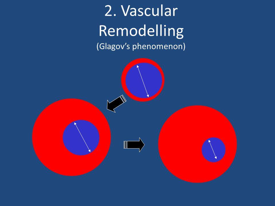 2. Vascular Remodelling (Glagov's phenomenon)