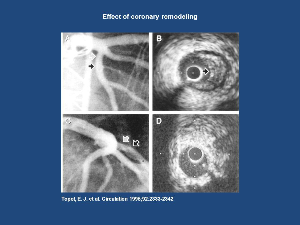 Topol, E. J. et al. Circulation 1995;92:2333-2342 Effect of coronary remodeling
