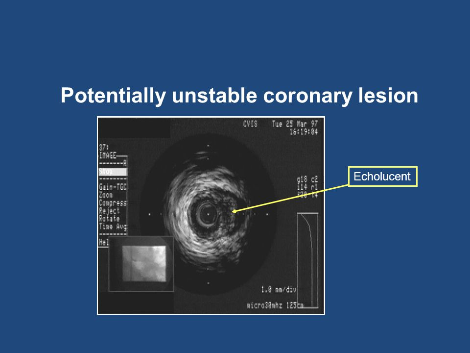 Potentially unstable coronary lesion Echolucent
