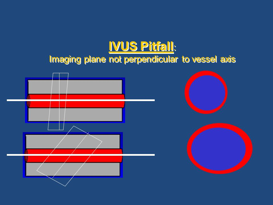 IVUS Pitfall : Imaging plane not perpendicular to vessel axis
