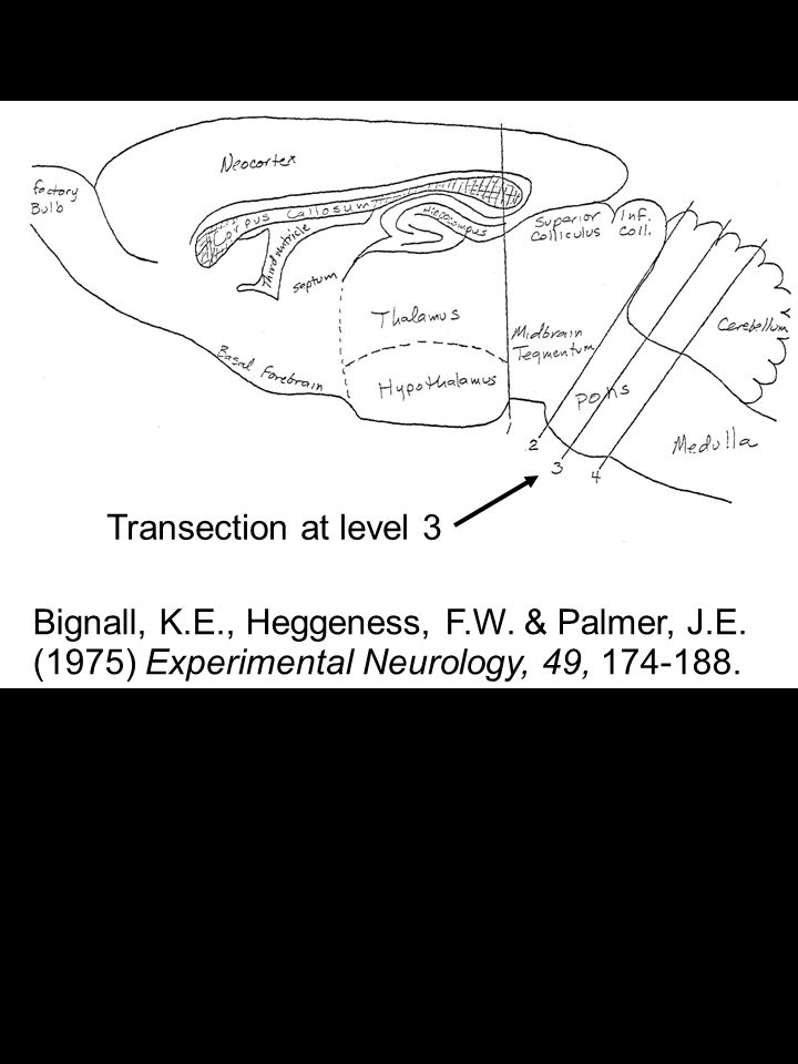 Bignall, K.E., Heggeness, F.W. & Palmer, J.E. (1975) Experimental Neurology, 49, 174-188.