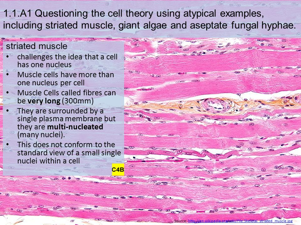 1.1.A1 Questioning the cell theory using atypical examples, including striated muscle, giant algae and aseptate fungal hyphae. striated muscle challen