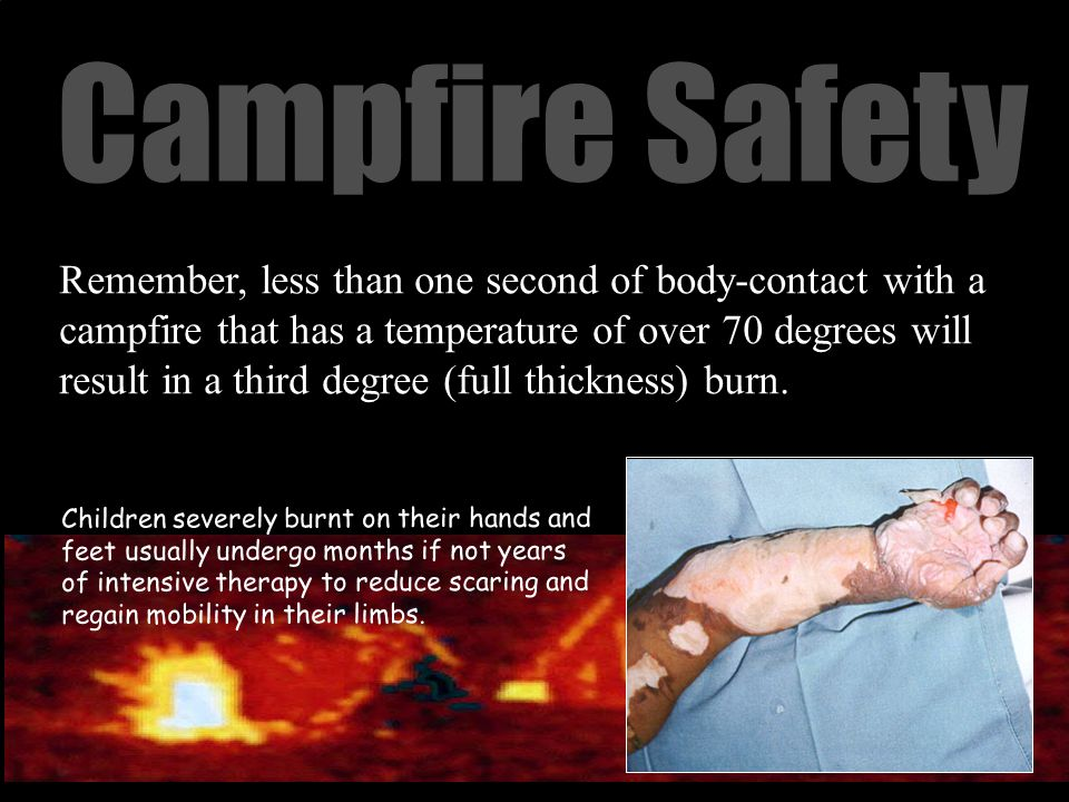 Campfire Safety Remember, less than one second of body-contact with a campfire that has a temperature of over 70 degrees will result in a third degree (full thickness) burn.