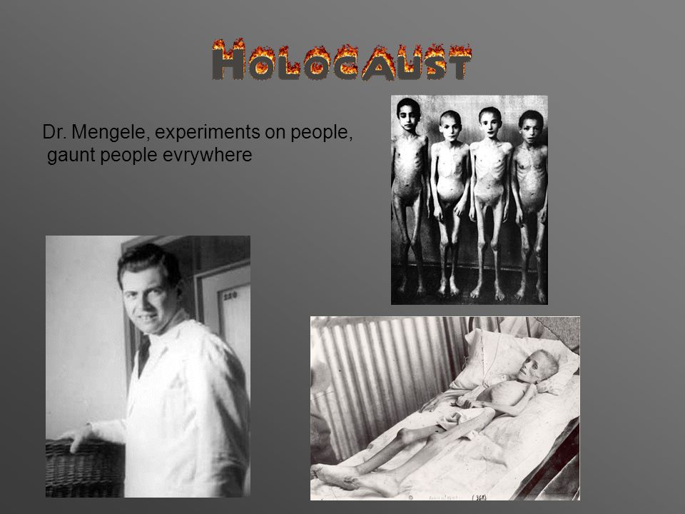Dr. Mengele, experiments on people, gaunt people evrywhere