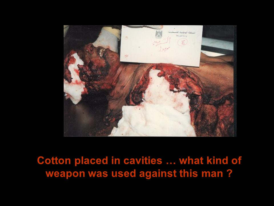 Cotton placed in cavities … what kind of weapon was used against this man