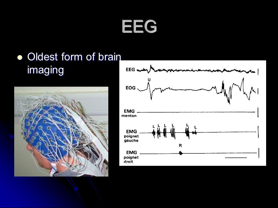 EEG Oldest form of brain imaging Oldest form of brain imaging