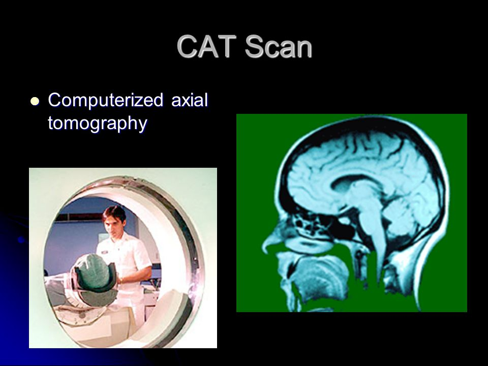 CAT Scan Computerized axial tomography Computerized axial tomography