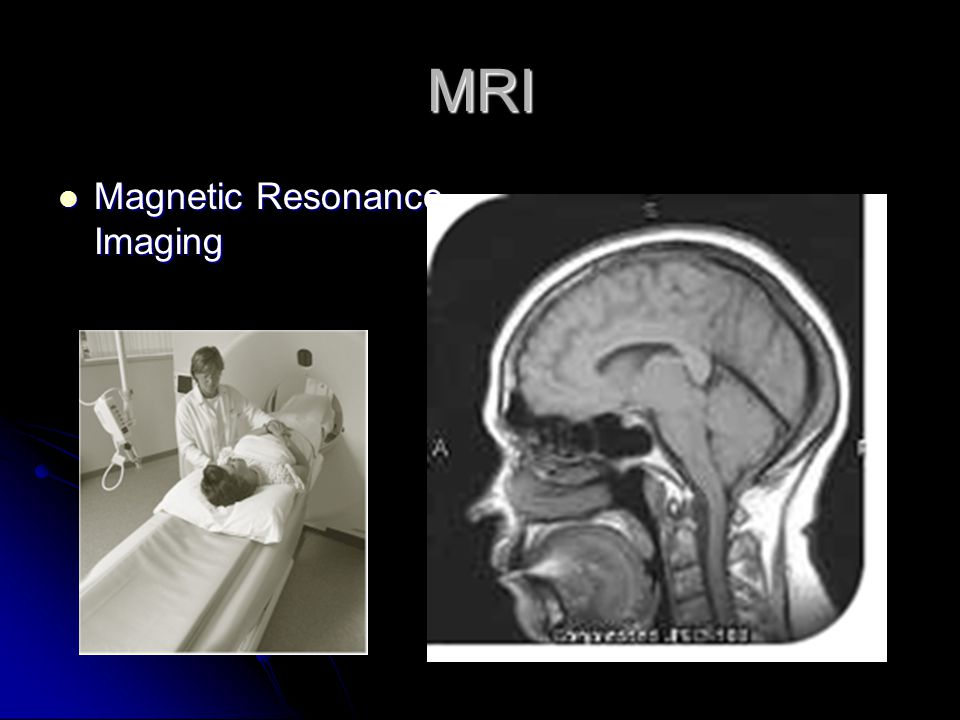 MRI Magnetic Resonance Imaging Magnetic Resonance Imaging