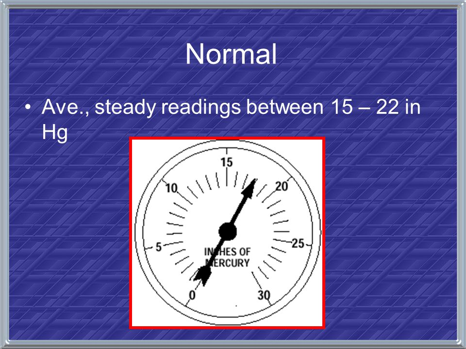 Normal Ave., steady readings between 15 – 22 in Hg