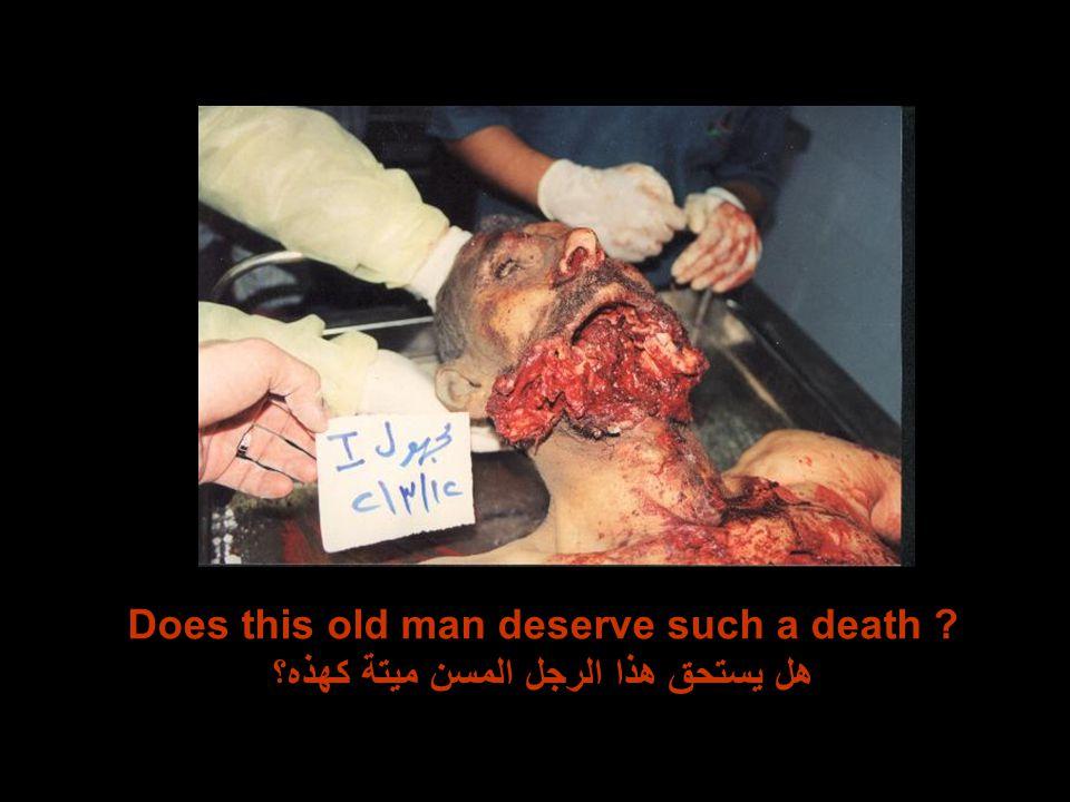 Does this old man deserve such a death هل يستحق هذا الرجل المسن ميتة كهذه؟