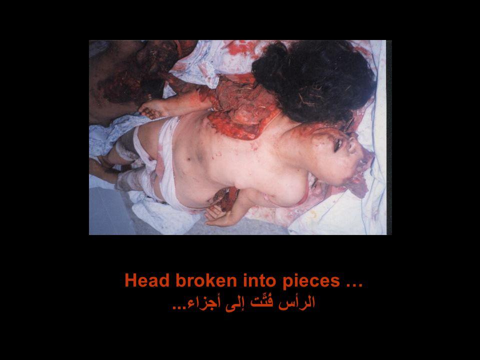 Head broken into pieces … الرأس فُتِّت إلى أجزاء...