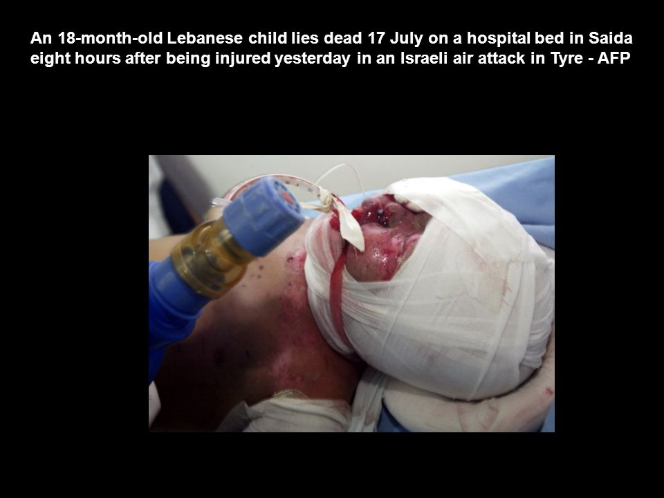An 18-month-old Lebanese child lies dead 17 July on a hospital bed in Saida eight hours after being injured yesterday in an Israeli air attack in Tyre - AFP