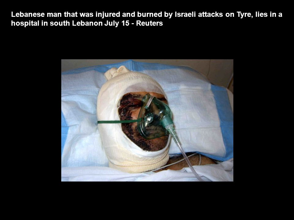 Lebanese man that was injured and burned by Israeli attacks on Tyre, lies in a hospital in south Lebanon July 15 - Reuters