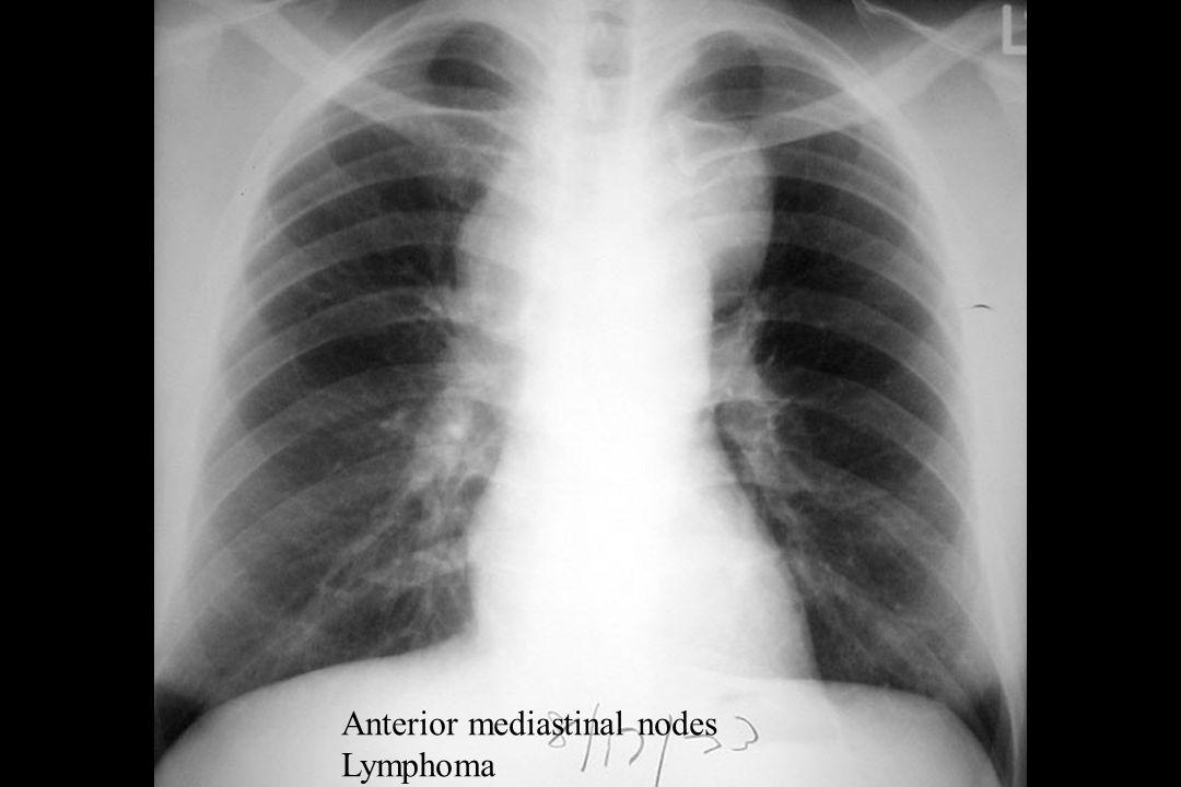 Anterior mediastinal nodes Lymphoma