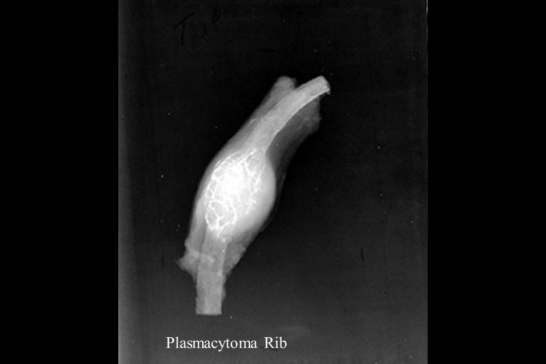 Plasmacytoma Rib