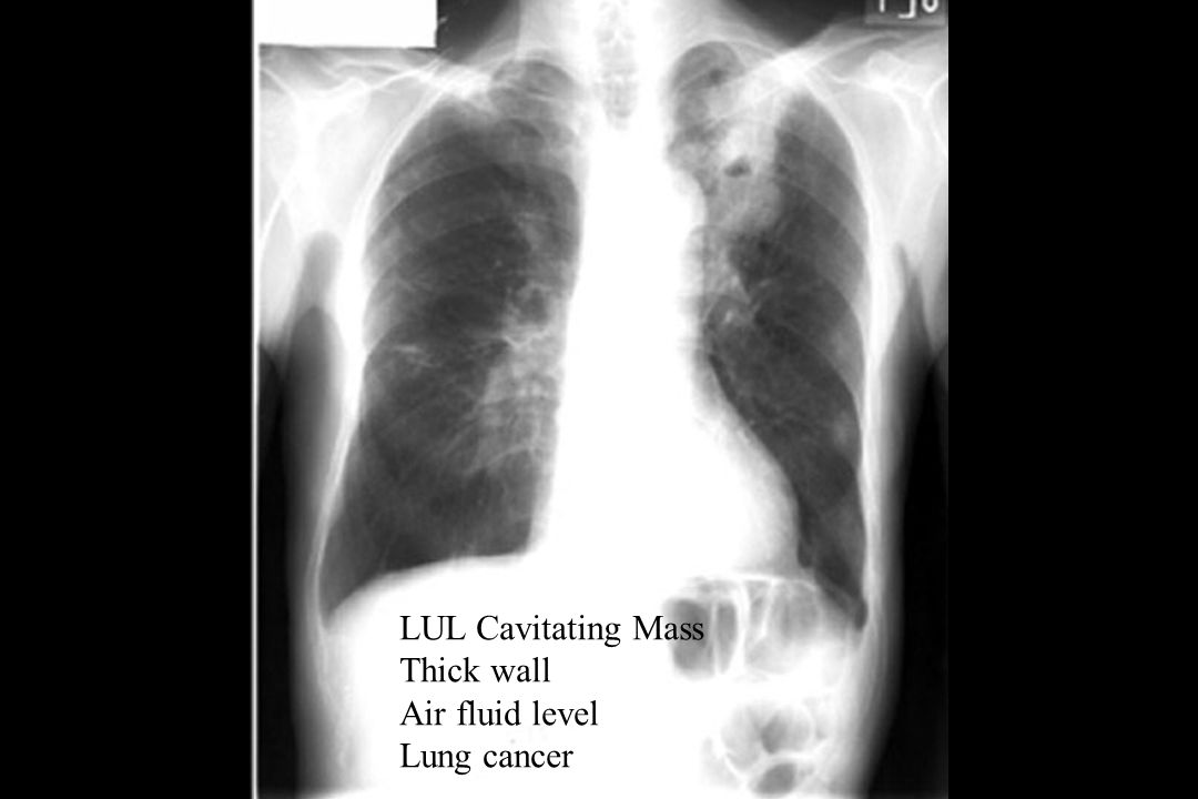 LUL Cavitating Mass Thick wall Air fluid level Lung cancer