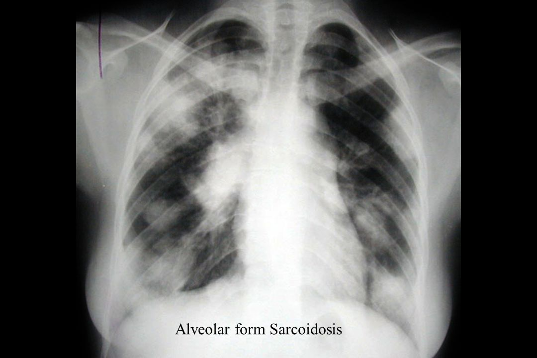 Alveolar form Sarcoidosis