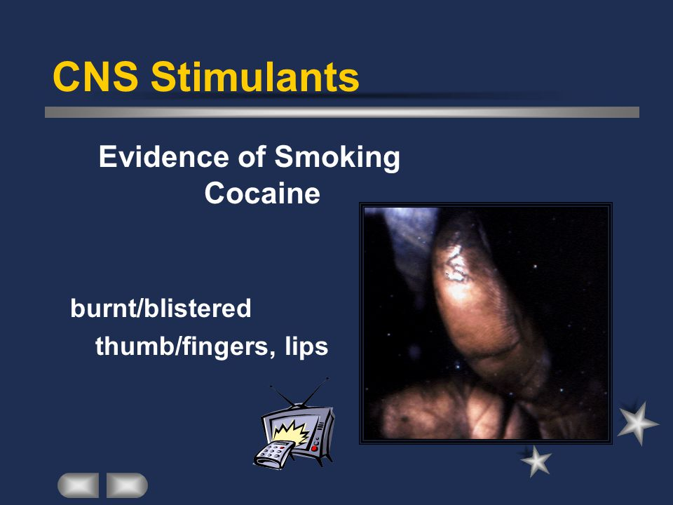 CNS Stimulants Evidence of Smoking Cocaine burnt/blistered thumb/fingers, lips