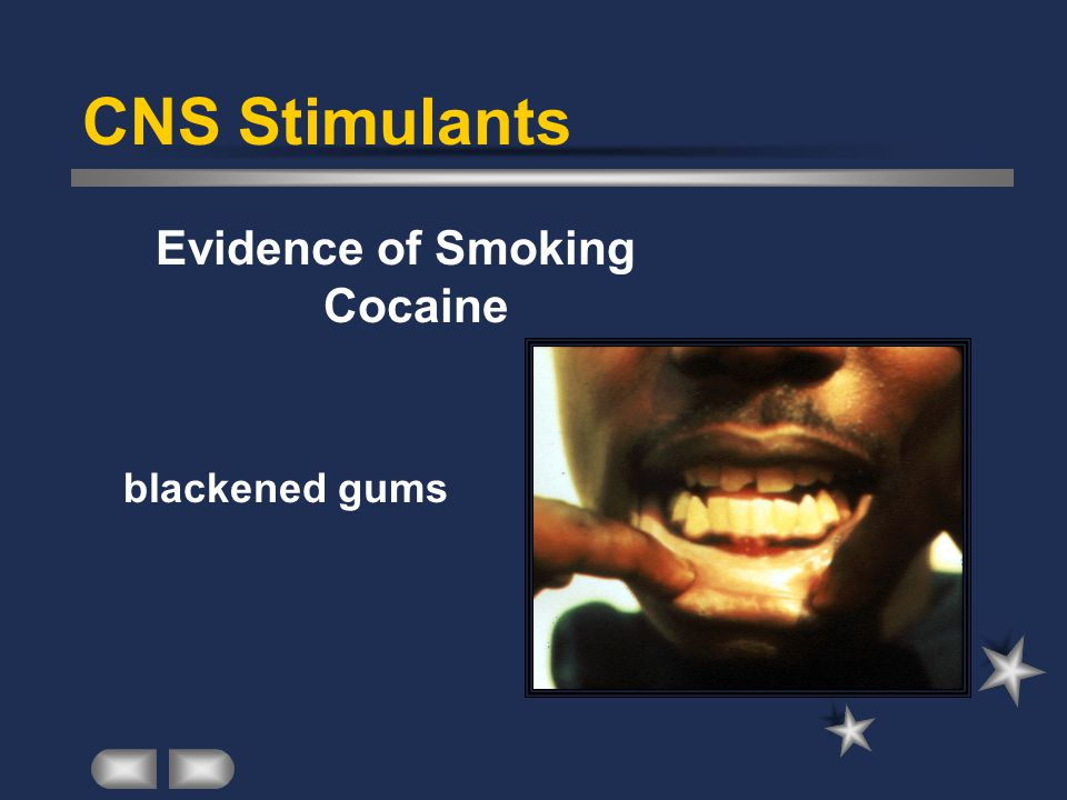 CNS Stimulants Evidence of Smoking Cocaine blackened gums
