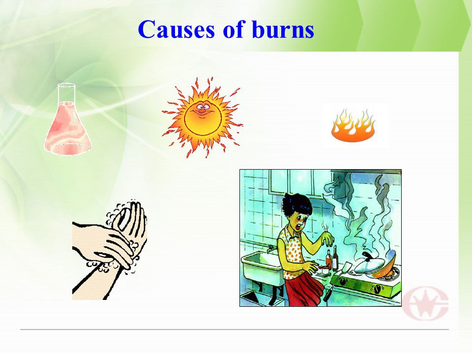 Causes of burns