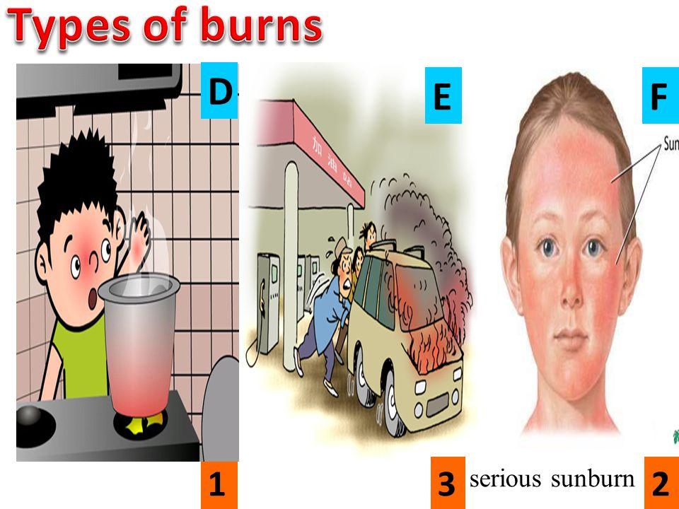 132 serious sunburn D EF