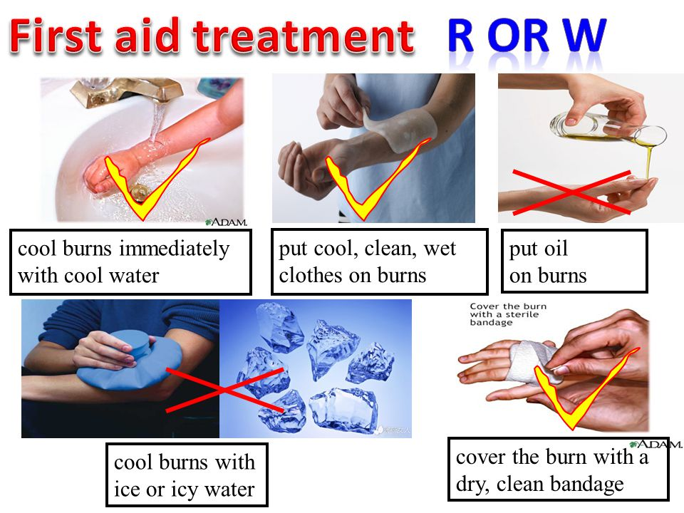 cool burns immediately with cool water cool burns with ice or icy water put oil on burns cover the burn with a dry, clean bandage put cool, clean, wet
