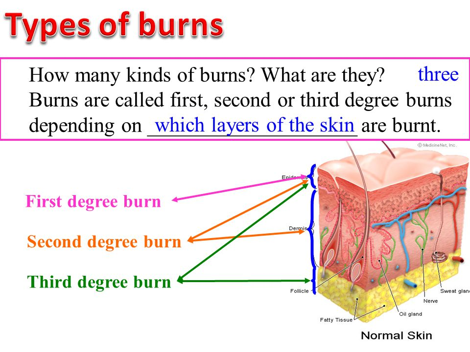 How many kinds of burns? What are they? Burns are called first, second or third degree burns depending on ____________________ are burnt. which layers