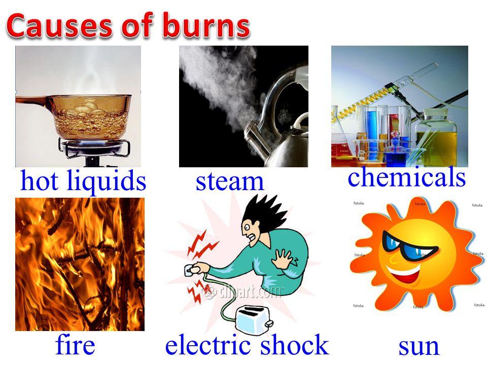 hot liquids fireelectric shock sun steam chemicals