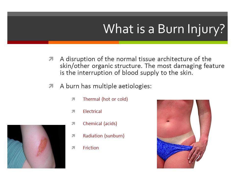 Pathophysiology of a Burn Coagulation -Irreversible tissue necrosis.