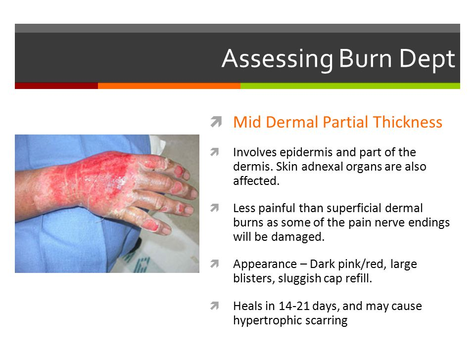 Assessing Burn Dept  Mid Dermal Partial Thickness  Involves epidermis and part of the dermis. Skin adnexal organs are also affected.  Less painful