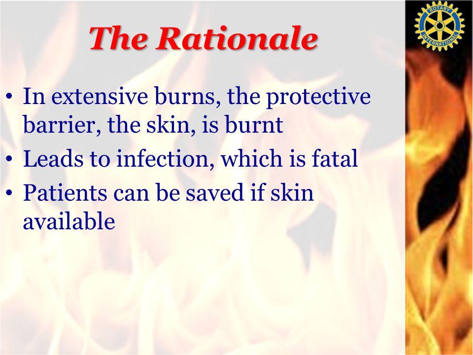 National Burns Centre smkeswani@gmail 25 Skin Donation Helpline: 022 2779 3333 www.skindonation.in www.burns-india.com skinbanknbc@gmail.com
