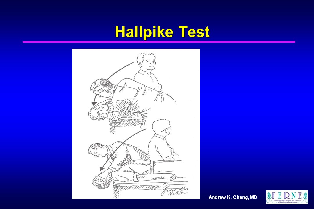 Andrew K. Chang, MD Hallpike Test