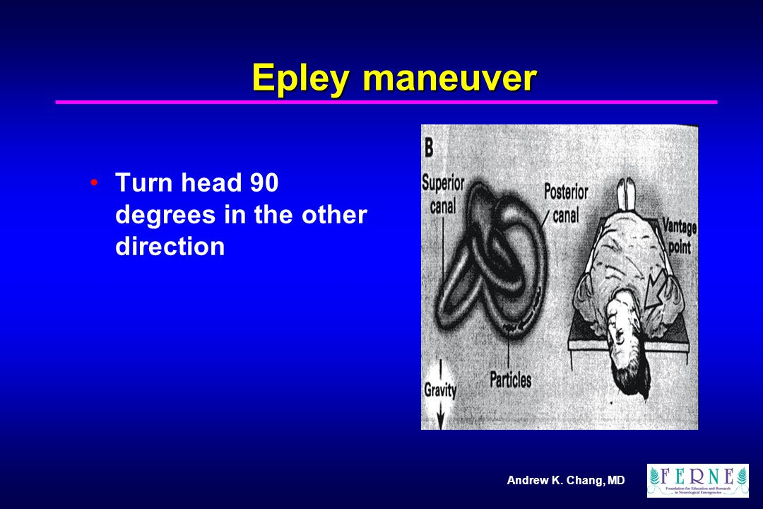 Andrew K. Chang, MD Epley maneuver Turn head 90 degrees in the other direction