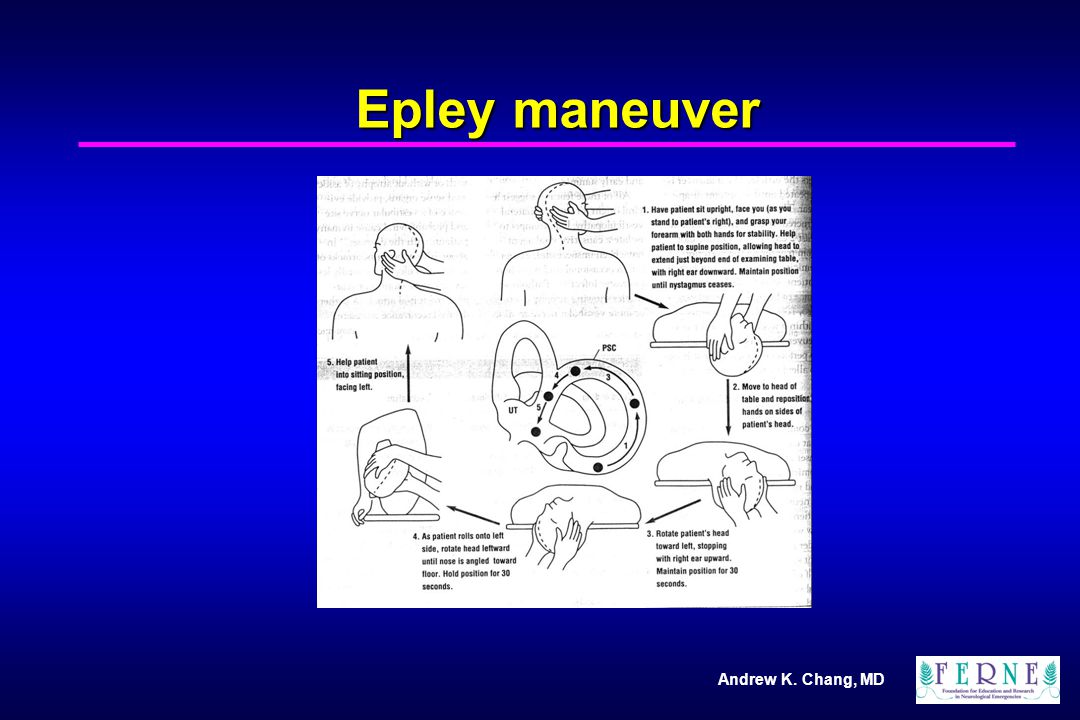 Andrew K. Chang, MD Epley maneuver
