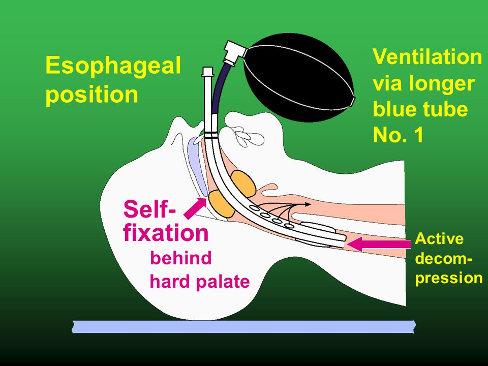 Esophageal position Self- fixation behind hard palate Active decom- pression Ventilation via longer blue tube No.