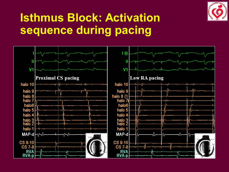 Isthmus Block: Activation sequence during pacing Proximal CS pacingLow RA pacing