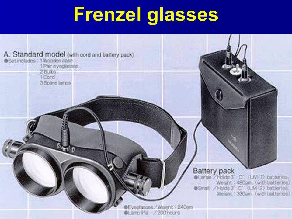 Frenzel glasses