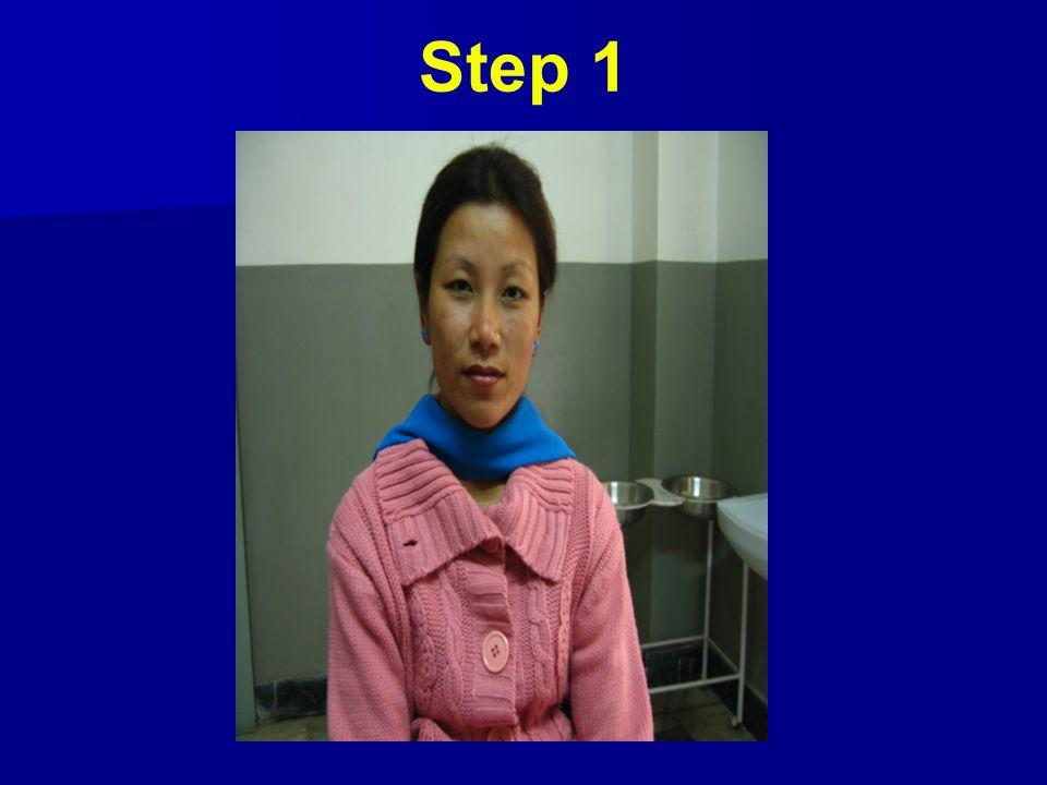 Step 1 3